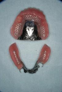 入れ歯の作り方2