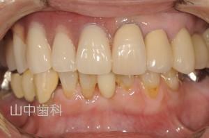 磁石の入れ歯 見た目改善