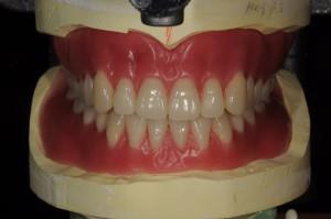 総入れ歯治療