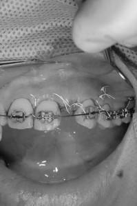 前歯のインプラント3