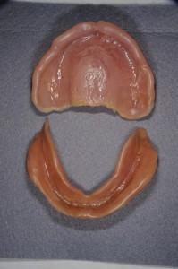 ダイナミック印象による義歯 (10)