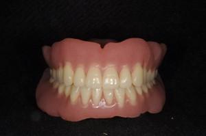 ダイナミック印象による義歯 (12)