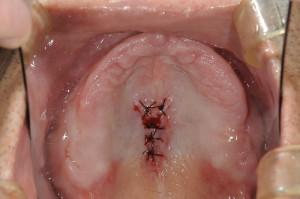 ダイナミック印象による義歯 (2)