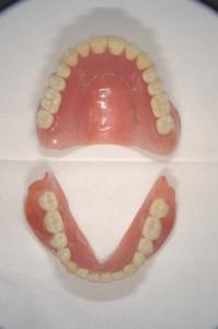 ダイナミック印象による義歯 (3)