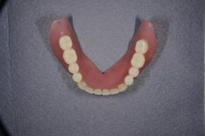 ダイナミック印象による義歯 (4)