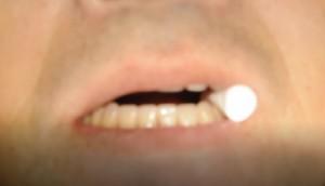 義歯の転覆試験