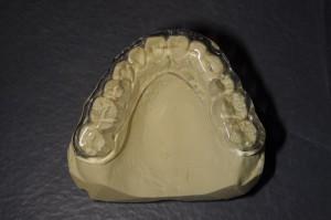 顎関節症のマウスピース2