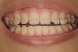 顎関節症のマウスピース4