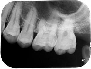 親知らずの手前の虫歯4