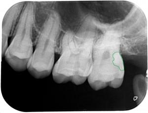 親知らずの手前の虫歯8