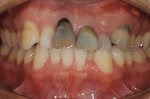 前歯の見た目改善