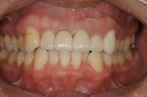 前歯の審美改善